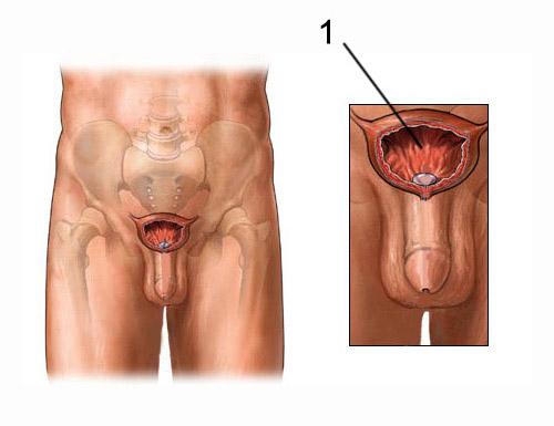 kokios operacijos atliekamos varpos