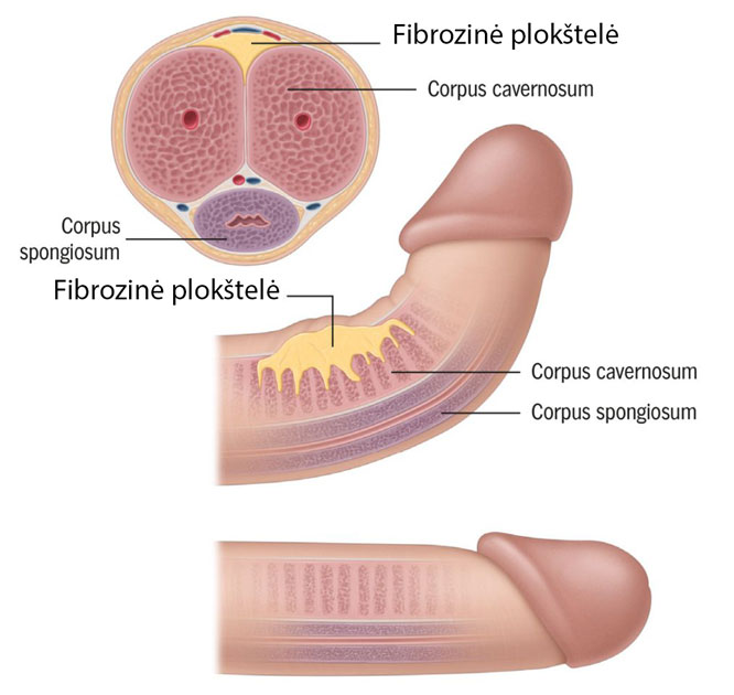 varpos organų liga kodel didelis nario dydis
