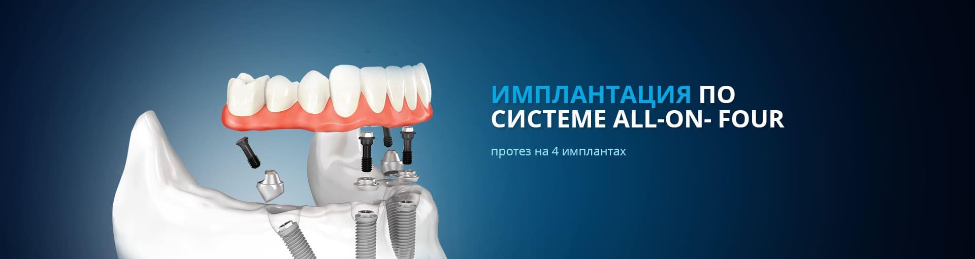 padidejes narys pripuciamas protezavimas prostatitas ir erekcijos problemos
