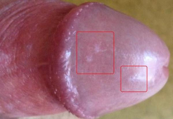 kapiliarai ant varpos koks storio penis turite