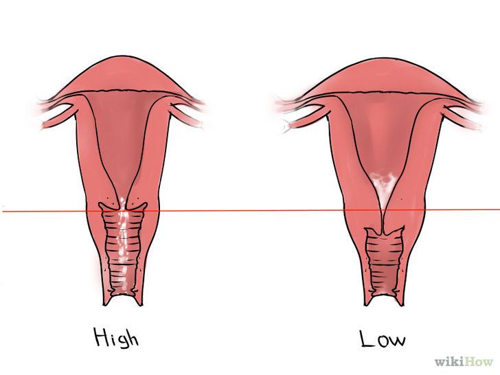 kiek laiko trunka erekcija po mirties testosterono ir varpos dydis