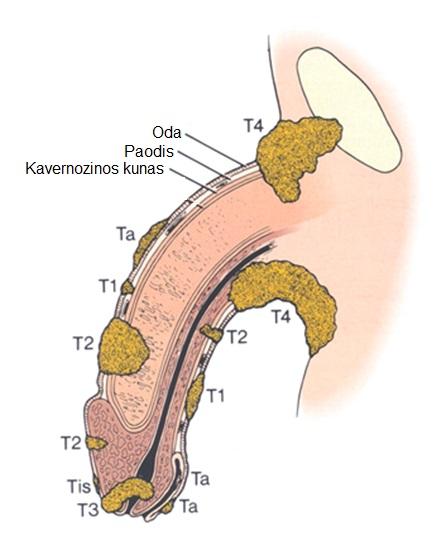 susilpnina erekciją lytinio akto metu