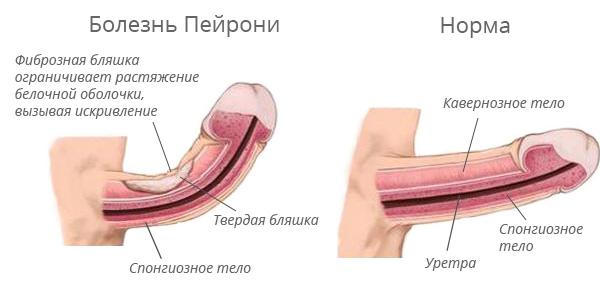 varpos kreivumas yra patologija erekcija stipri silpna